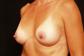 After Photo - Breast Augmentation - Case #3870 - Oblique View