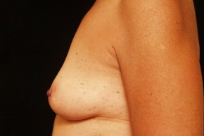 Before Photo - Breast Augmentation - Case #3871 - Lateral View