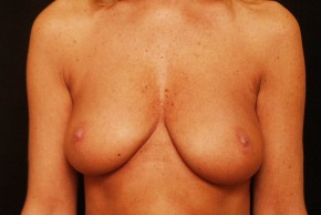 Before Photo - Breast Augmentation - Case #3872 - Frontal View