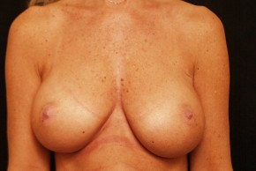 After Photo - Breast Augmentation - Case #3872 - Frontal View