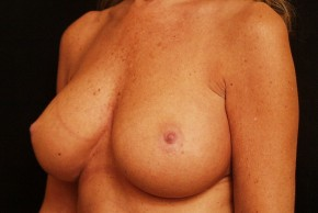 After Photo - Breast Augmentation - Case #3872 - Oblique View