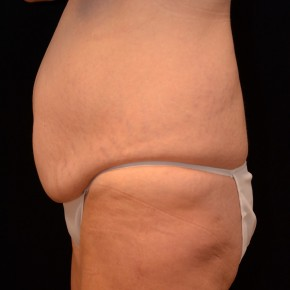 Before Photo - Tummy Tuck - Case #3874 - Lateral View