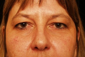 Before Photo - Eyelid Surgery - Case #3878 - Frontal View
