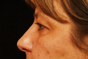 Before Photo - Eyelid Surgery - Case #3878 - Lateral View