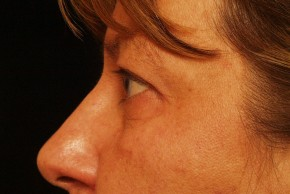After Photo - Eyelid Surgery - Case #3878 - Lateral View