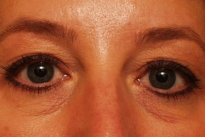 Before Photo - Eyelid Surgery - Case #3879 - Frontal View