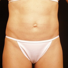 After Photo - Liposuction - Case #3880 - Frontal View