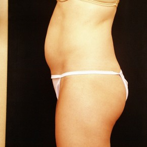 Before Photo - Liposuction - Case #3880 - Oblique View