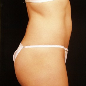 After Photo - Liposuction - Case #3880 - Lateral View