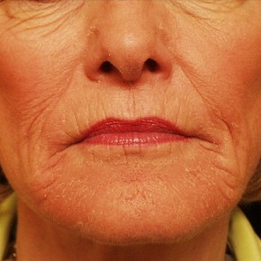 Before Photo - Laser Skin Resurfacing - Case #3881 - Skin Resurfacing - Frontal View