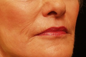 After Photo - Laser Skin Resurfacing - Case #3881 - Skin Resurfacing - Oblique View
