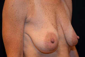 Before Photo - Breast Lift - Case #3884 - Oblique View