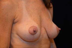 After Photo - Breast Lift - Case #3884 - Oblique View