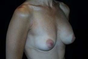 Before Photo - Breast Augmentation - Case #3908 - Oblique View