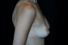 Before Photo - Breast Augmentation - Case #3908 - Lateral View