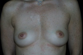 Before Photo - Breast Augmentation - Case #3909 - Frontal View