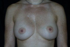 After Photo - Breast Augmentation - Case #3909 - Frontal View