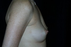 Before Photo - Breast Augmentation - Case #3909 - Lateral View
