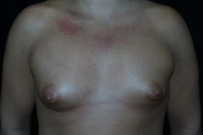 Before Photo - Breast Augmentation - Case #3910 - Frontal View