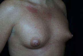 Before Photo - Breast Augmentation - Case #3910 - Oblique View