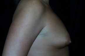 Before Photo - Breast Augmentation - Case #3910 - Lateral View
