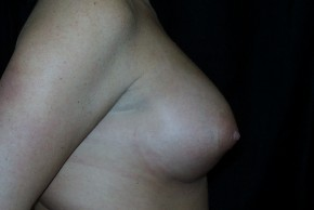 After Photo - Breast Augmentation - Case #3910 - Lateral View