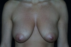 Before Photo - Breast Augmentation - Case #3922 - Breast Augmentation and Breast Lift  - Frontal View