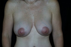 After Photo - Breast Augmentation - Case #3923 - Breast Augmentation and Breast Lift  - Frontal View