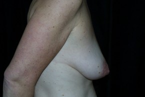 Before Photo - Breast Augmentation - Case #3923 - Breast Augmentation and Breast Lift  - Lateral View