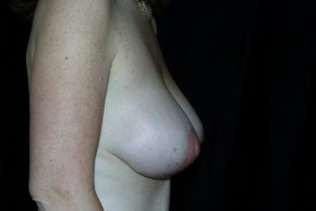 After Photo - Breast Augmentation - Case #3923 - Breast Augmentation and Breast Lift  - Lateral View