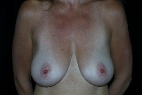 Before Photo - Breast Augmentation - Case #3924 - Breast Augmentation and Breast Lift  - Frontal View