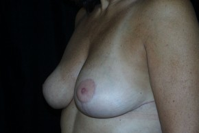 After Photo - Breast Lift - Case #3925 - Breast Reduction - Oblique View