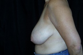 Before Photo - Breast Lift - Case #3925 - Breast Reduction - Lateral View