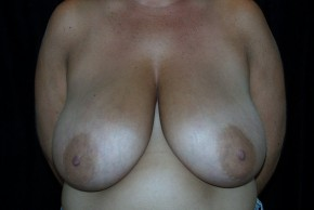 Before Photo - Breast Reduction - Case #3926 - Frontal View
