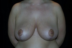 After Photo - Breast Reduction - Case #3926 - Frontal View