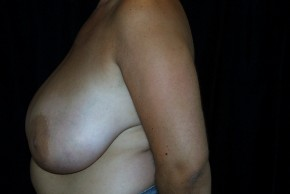 Before Photo - Breast Reduction - Case #3926 - Lateral View