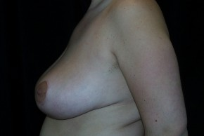 After Photo - Breast Reduction - Case #3926 - Lateral View