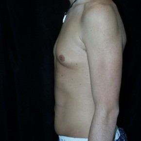 Before Photo - Gynecomastia - Case #3927 - Gynecomastia Male Breast Reduction - Lateral View