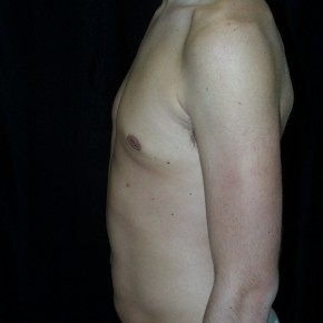 After Photo - Gynecomastia - Case #3927 - Gynecomastia Male Breast Reduction - Lateral View