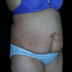 Before Photo - Tummy Tuck - Case #3929 - Abdominoplasty - Oblique View