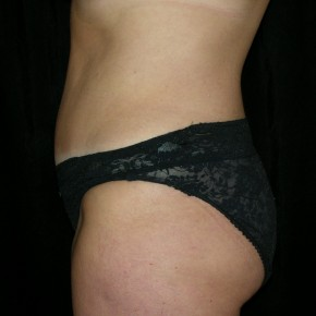 After Photo - Tummy Tuck - Case #3931 - Abdominoplasty - Lateral View