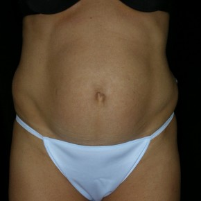Before Photo - Tummy Tuck - Case #3932 - Abdominoplasty - Frontal View