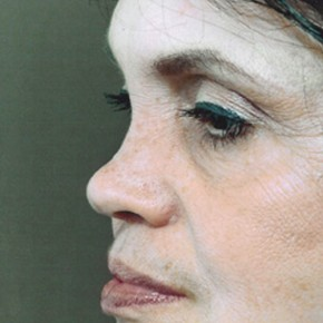 Before Photo - Nose Surgery - Case #3936 - Secondary Rhinoplasty - Oblique View
