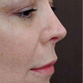 After Photo - Nose Surgery - Case #3938 - Secondary Rhinoplasty - Lateral View