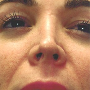 Before Photo - Nose Surgery - Case #3938 - Secondary Rhinoplasty - Worm's Eye View