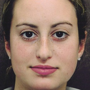 Before Photo - Nose Surgery - Case #3945 - Primary Rhinoplasty - Frontal View