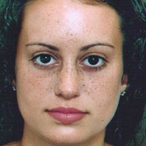 After Photo - Nose Surgery - Case #3945 - Primary Rhinoplasty - Frontal View