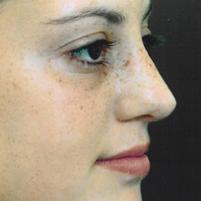 After Photo - Nose Surgery - Case #3945 - Primary Rhinoplasty - Oblique View