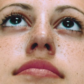 After Photo - Nose Surgery - Case #3945 - Primary Rhinoplasty - Worm's Eye View