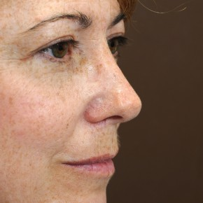 After Photo - Nose Surgery - Case #3946 - Primary Rhinoplasty - Oblique View